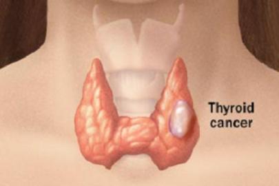 cancertiroida
